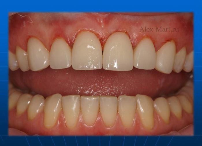 Отбеливающие полоски для зубов crest 3d white отзывы